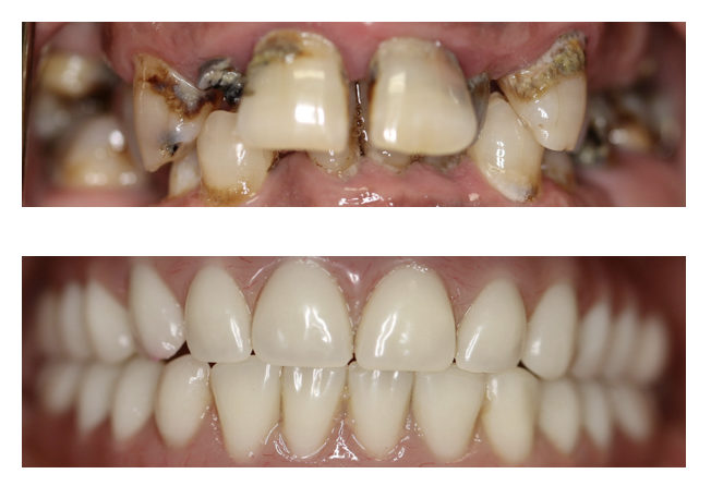 all-on-four full mouth reconstruction